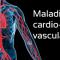 Les maladies cardio vasculaires